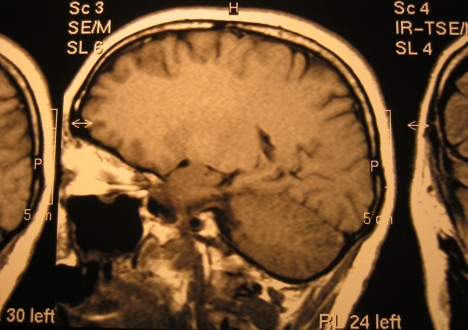 Brain scan cropped 2